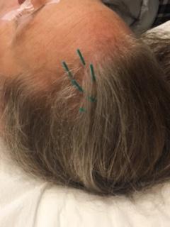 scalp-acu
